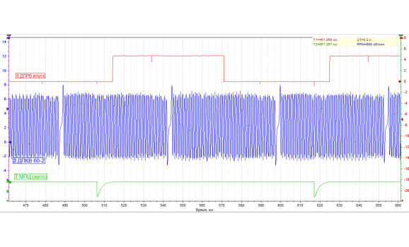 Эталон синхронизации-Сигнал ДПКВ + ДПРВ-Hyundai-i30 2007-2013 : Image 1