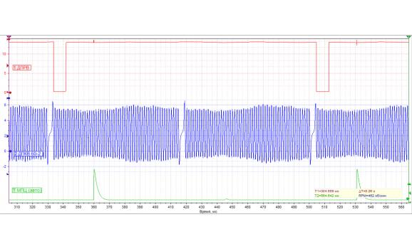 Эталон синхронизации-Сигнал ДПКВ + ДПРВ-Hyundai-Getz 2002-2011 : Image 1
