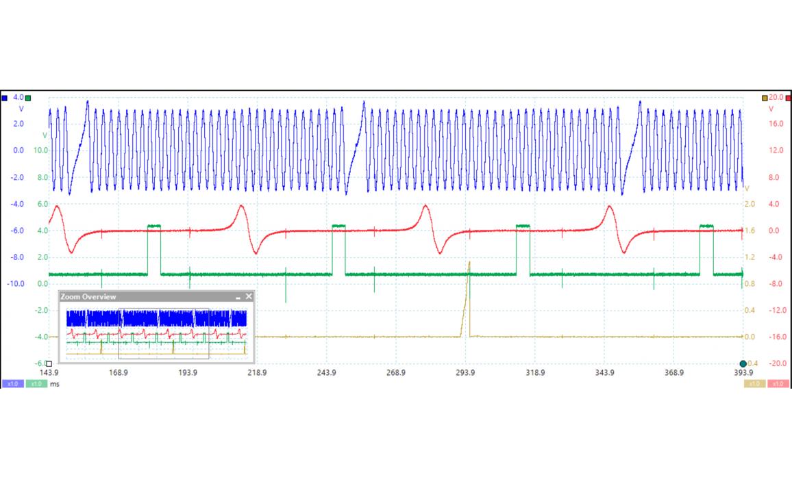 Эталон синхронизации-Сигнал ДПКВ + ДПРВ-Lexus-ES (XV30) 2001–2006 : Image 1