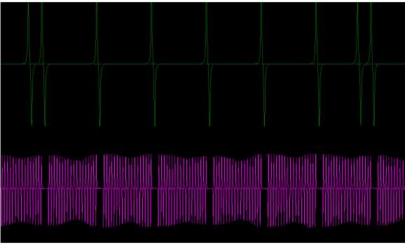 Good timing-CKP & CMP signal-Volvo-FH12 1 1993-2002 : Image 1