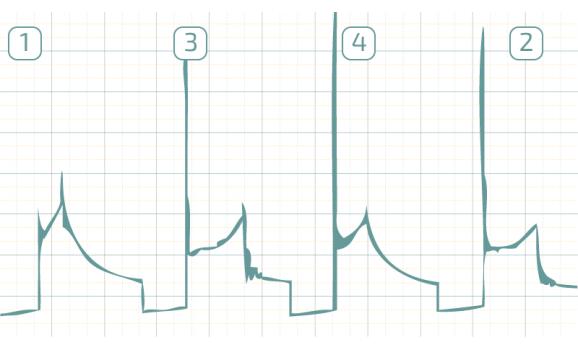 Короткозамкнутые витки в катушке зажигания - Вторичное напряжение (емкостной датчик Cx) - Daewoo - Matiz 2000-2004 : Image 1