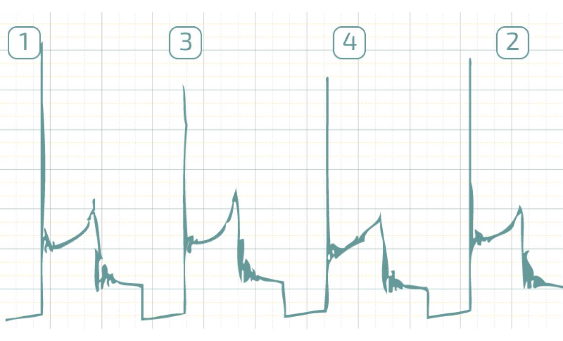 Эталон - Вторичное напряжение (емкостной датчик Cx) - Daewoo - Matiz 2000-2004 : Image 1