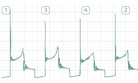 Good - Secondary voltage (Cx pickup clip) - Daewoo - Matiz 2000-2004 : Image 1