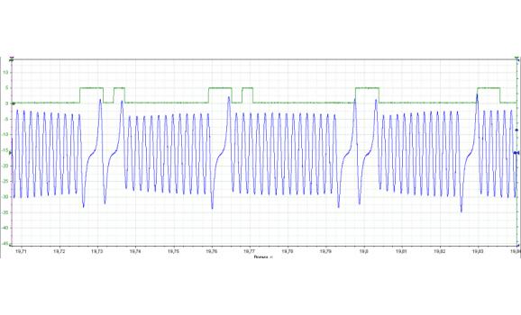 CAM advance - CKP & CKM signal - Suzuki - Grand Vitara 2005–2017 : Image 1