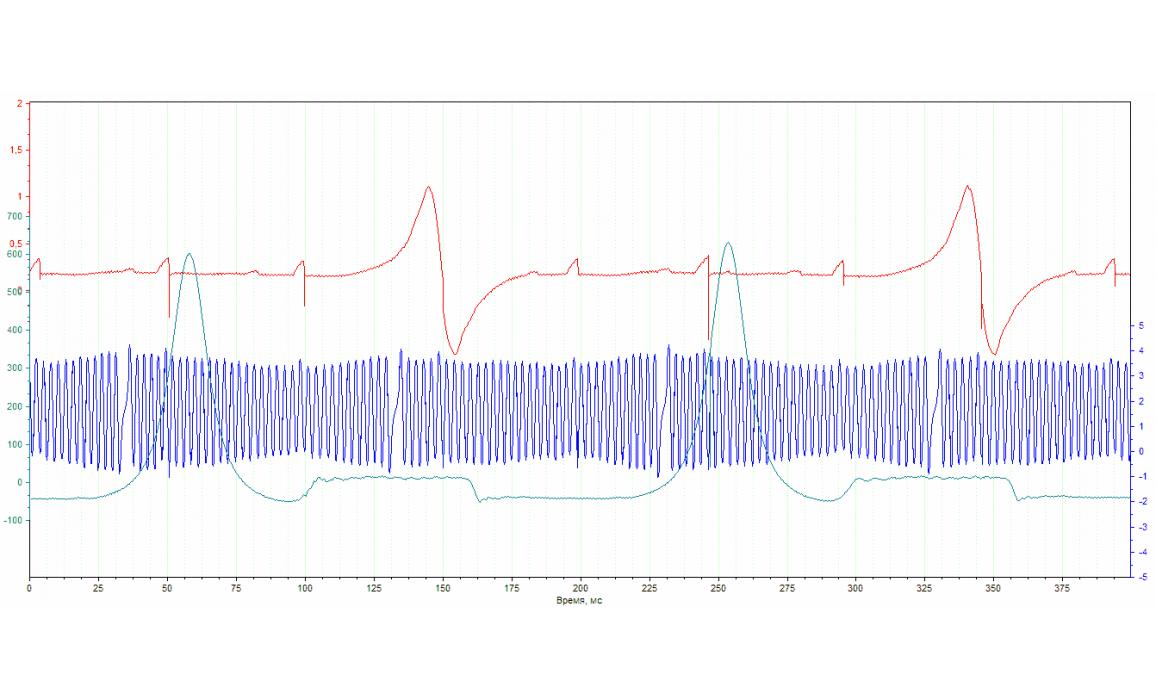 Good timing - CKP & CKM signal - Ford - Scorpio 1994-1998 : Image 1