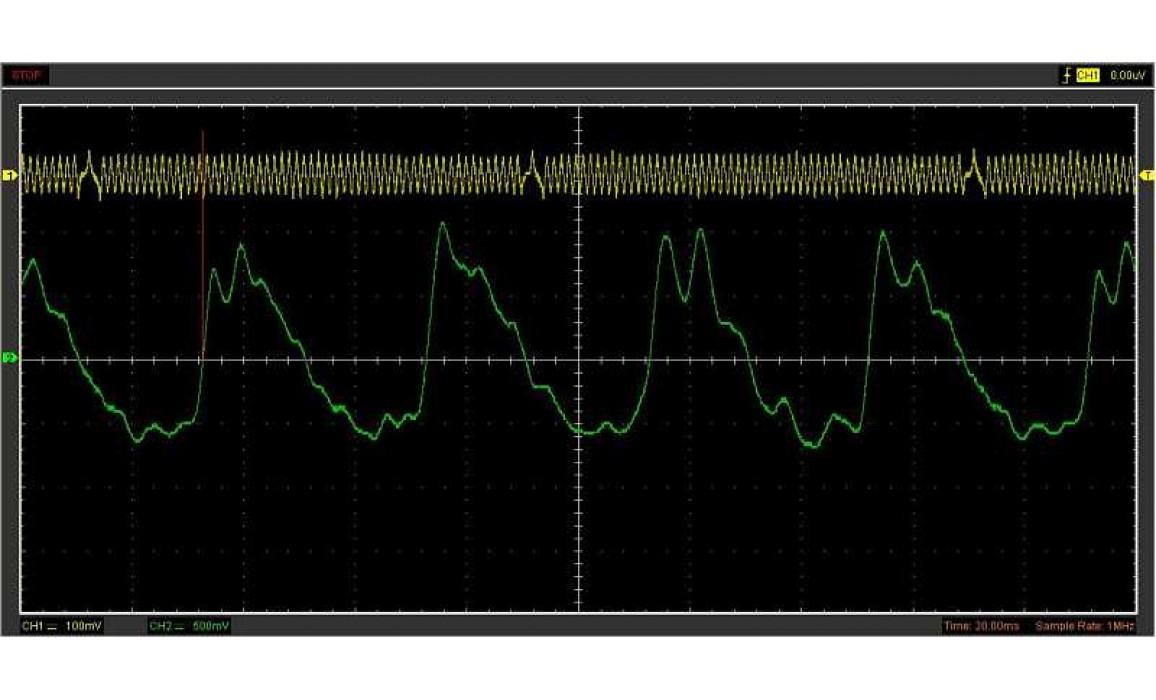 Good timing - CKP & CKM signal - Renault - Espace 1996–2002 : Image 1