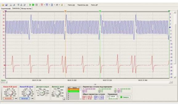 Good timing - CKP & CKM signal - Mazda - 6 2002-2008 : Image 1