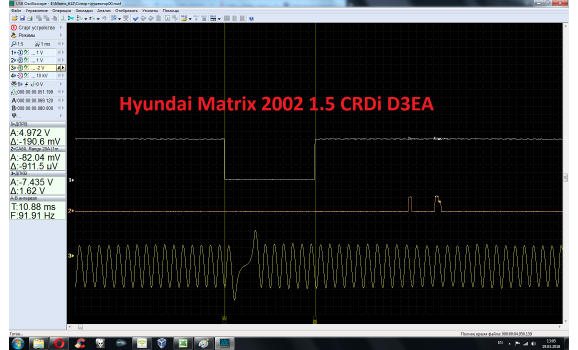 Good timing - CKP & CKM signal - Hyundai - Matrix 2001-2010 : Image 1