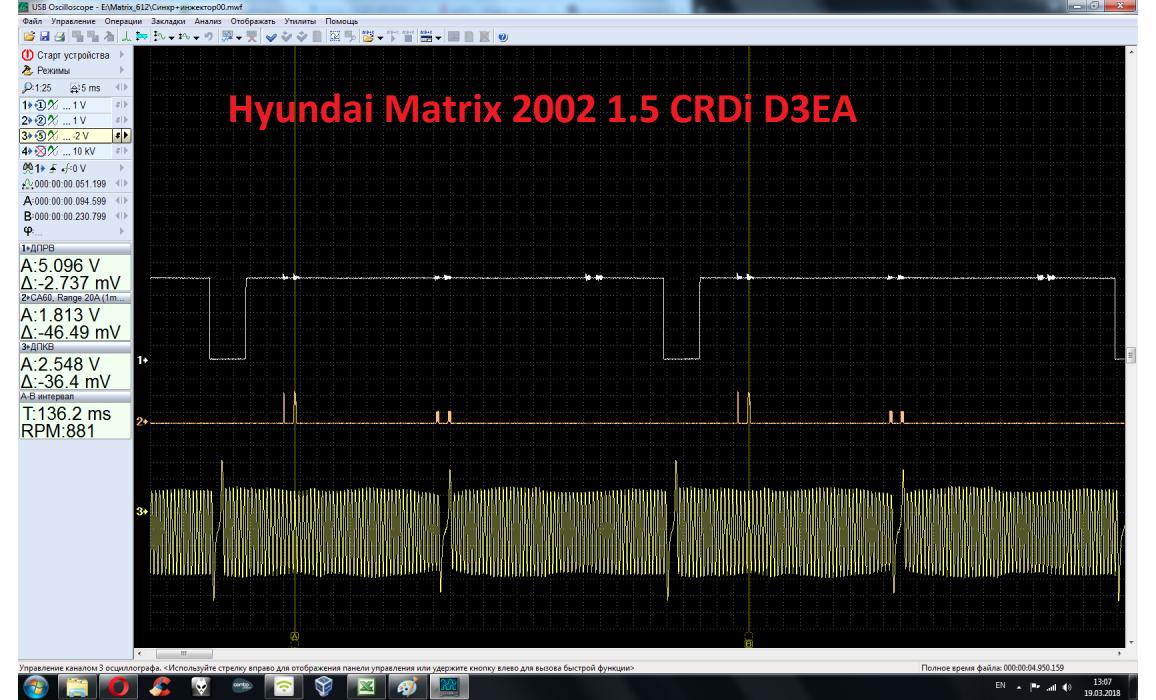 Эталон синхронизации - Сигнал ДПКВ + ДПРВ - Hyundai - Matrix 2001-2010 : Image 2
