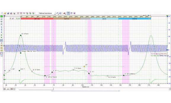 Эталон - Давление в цилиндре - VAZ - 2112 1998-2008 : Image 1