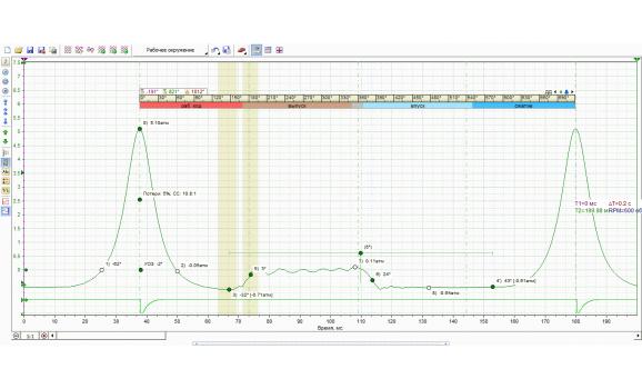Эталон - Давление в цилиндре - KIA - Cerato 2008-2013 : Image 1