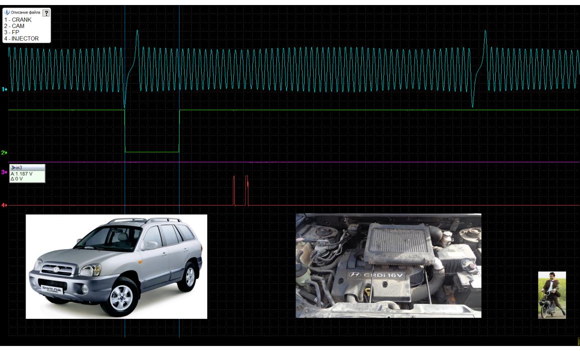 Good timing - CKP & CKM signal - Hyundai - Santa Fe 2001-2006 : Image 2