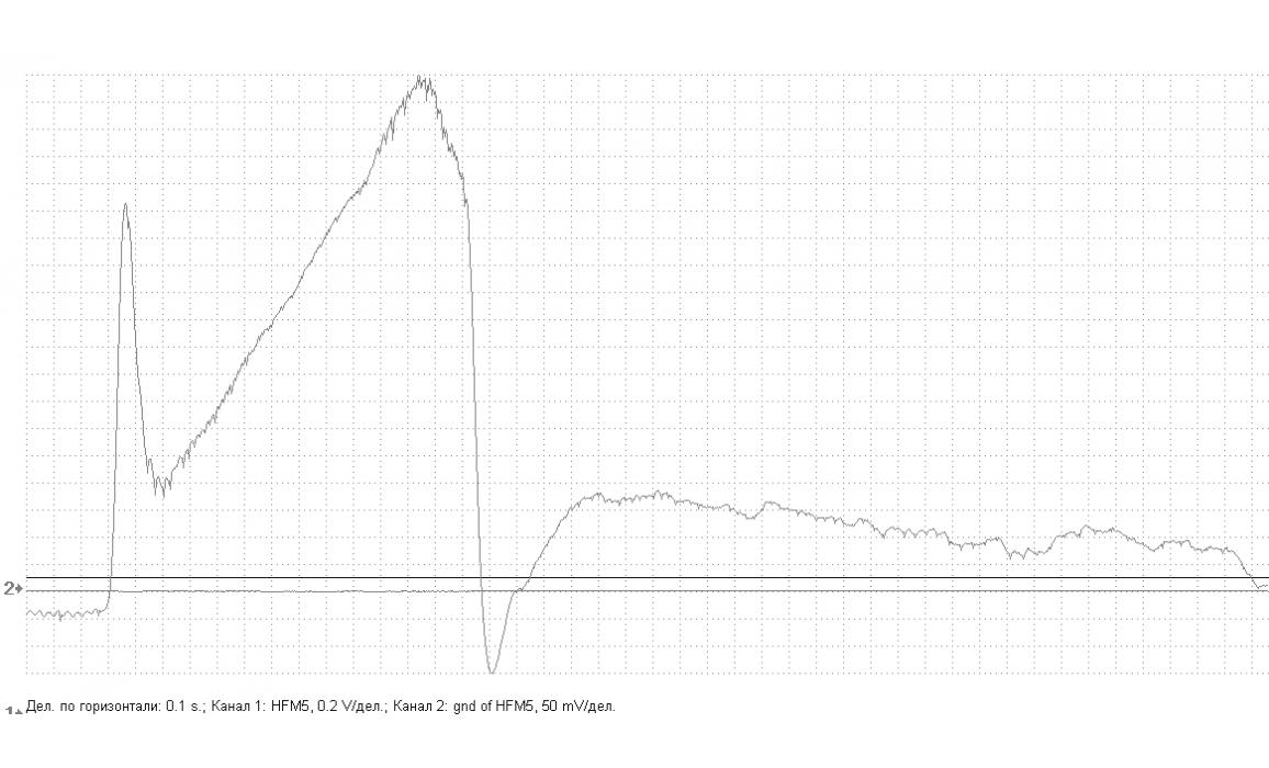 Faulty MAF sensor - Output voltage - Skoda - Octavia 1996-2010 : Image 1