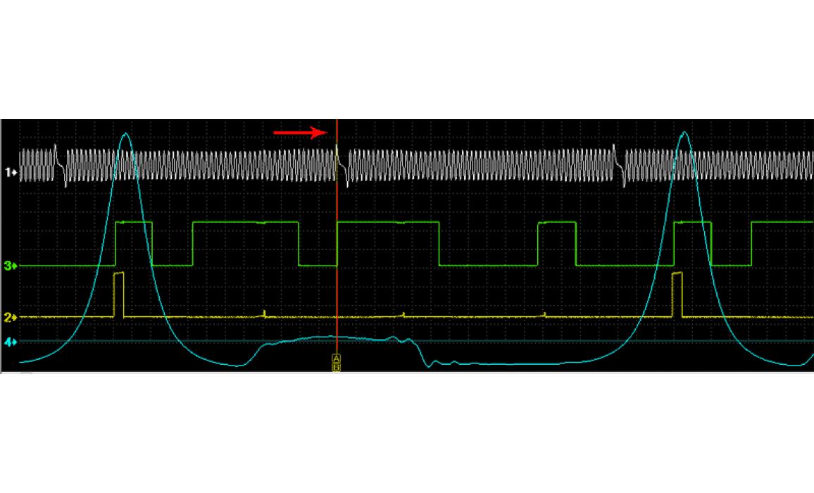 Good timing - CKP, CKM & in-cylinder pressure - VW - Passat B5 1996-2006 : Image 1