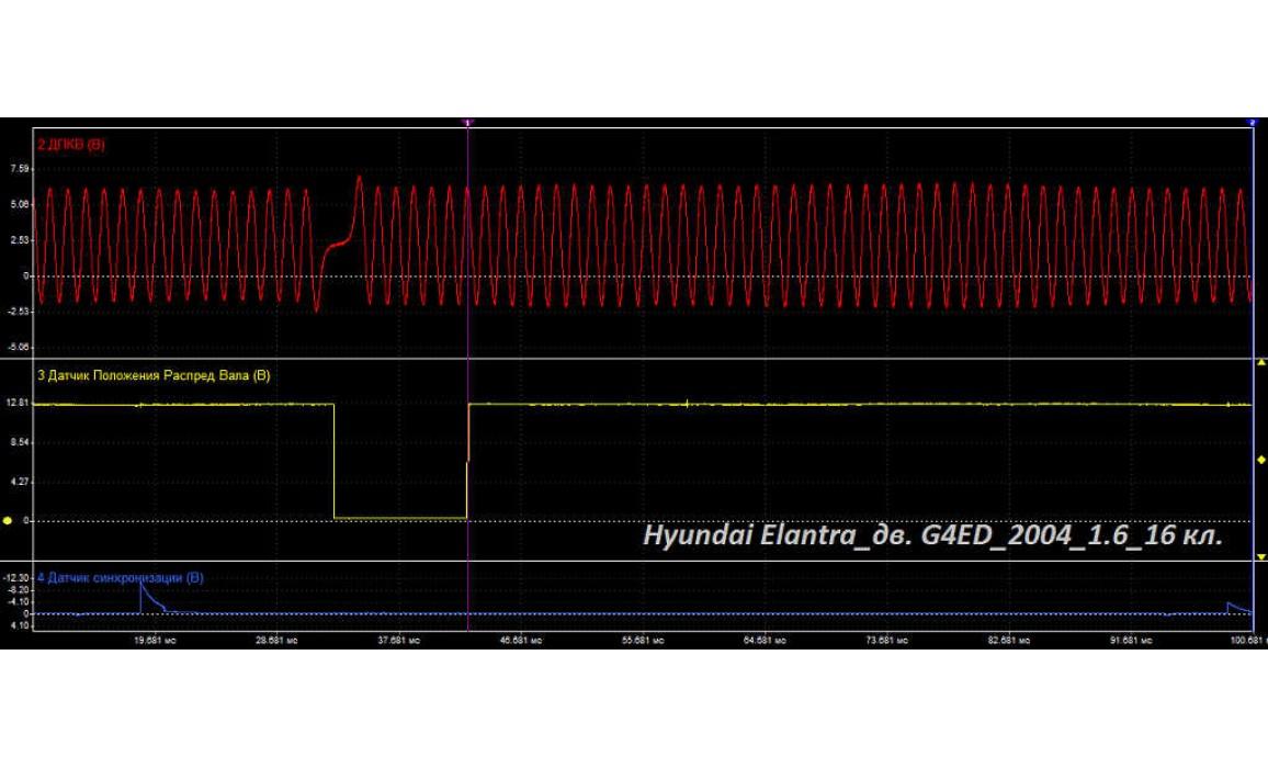Good timing - CKP & CKM signal - Hyundai - Elantra 2001–2006 : Image 1