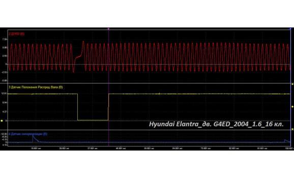 Эталон синхронизации - Сигнал ДПКВ + ДПРВ - Hyundai - Elantra 2001–2006 : Image 1