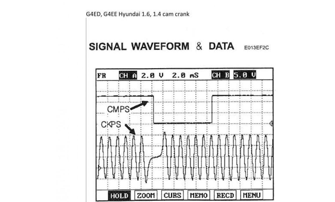 Good timing - CKP & CKM signal - Hyundai - Elantra 2001–2006 : Image 2