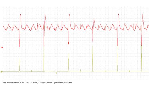 Неисправность системы зажигания - Выходное напряжени + Syncro - ГАЗ - 3110 Волга 1997-2005 : Image 1