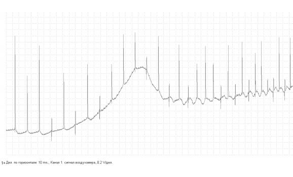 Faulty MAF sensor - Output voltage - Mercedes - W140 1991-1998 : Image 2